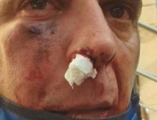 """""""Udite Udite"""" Carabiniere massacrato di botte,  l'immigrato percepisce il reddito di cittadinanza"""