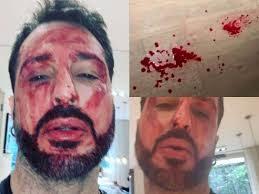 """Fabrizio Corona come Hannibal Lecter, e scrive a Massimo Giletti: """"Sangue ovunque"""""""