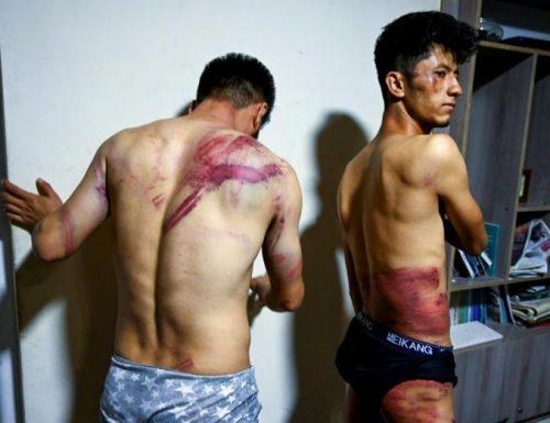Orrore talebano, giornalisti torturati perché filmavano la protesta delle donne: le immagini sono forti